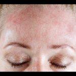 Cómo curar la dermatitis